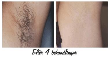 permanent hårborttagning ipl