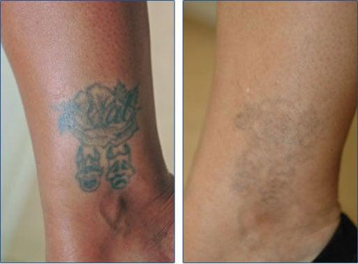 laserborttagning tatuering utbildning