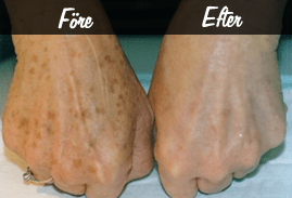 hudföryngring